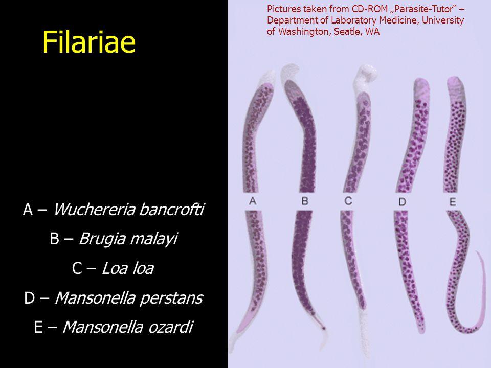 "Filariae A – Wuchereria bancrofti B – Brugia malayi C – Loa loa D – Mansonella perstans E – Mansonella ozardi Pictures taken from CD-ROM ""Parasite-Tutor – Department of Laboratory Medicine, University of Washington, Seatle, WA"