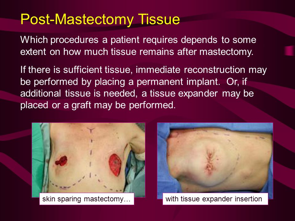 Post-Mastectomy Tissue Which procedures a patient requires depends to some extent on how much tissue remains after mastectomy.