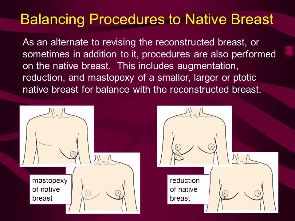 Balancing Procedures to Native Breast As an alternate to revising the reconstructed breast, or sometimes in addition to it, procedures are also performed on the native breast.