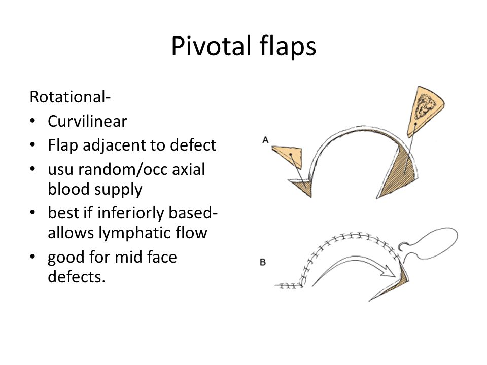 Pivotal flaps Transposition Linear Can be adjacent or distant to defect  more options for skin donor, better scar/orientation of donor site usu random/occ axial blood supply small-med defect L:W <1:3