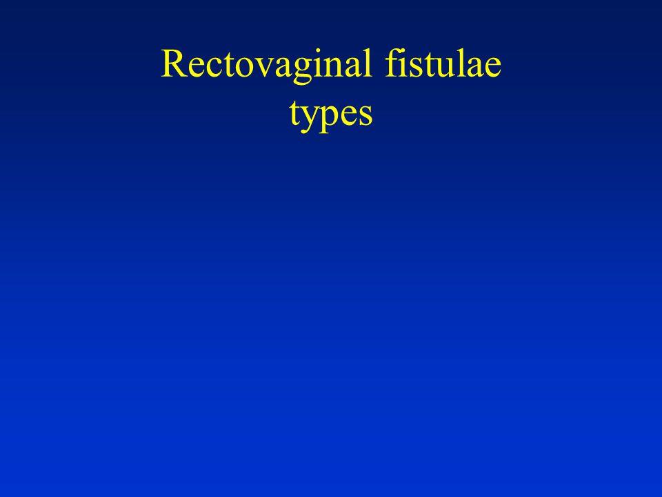 Rectovaginal fistulae types