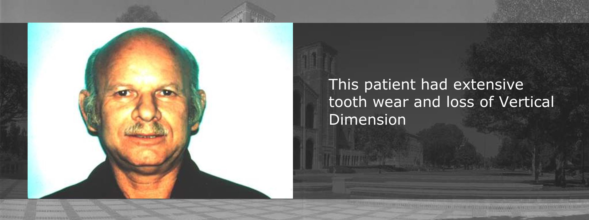 This patient had extensive tooth wear and loss of Vertical Dimension