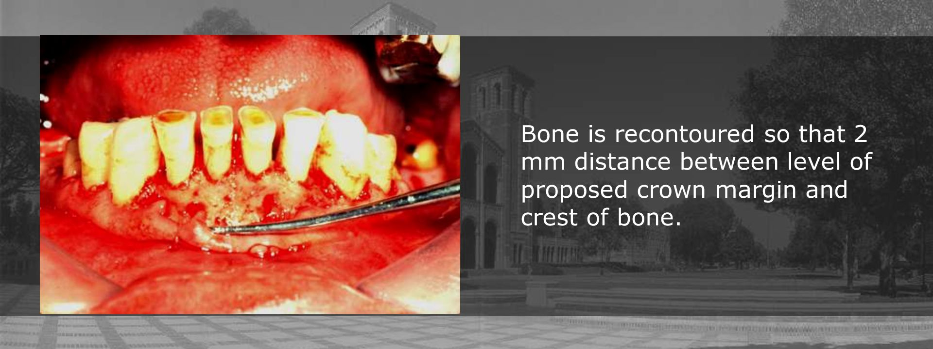 Bone is recontoured so that 2 mm distance between level of proposed crown margin and crest of bone.