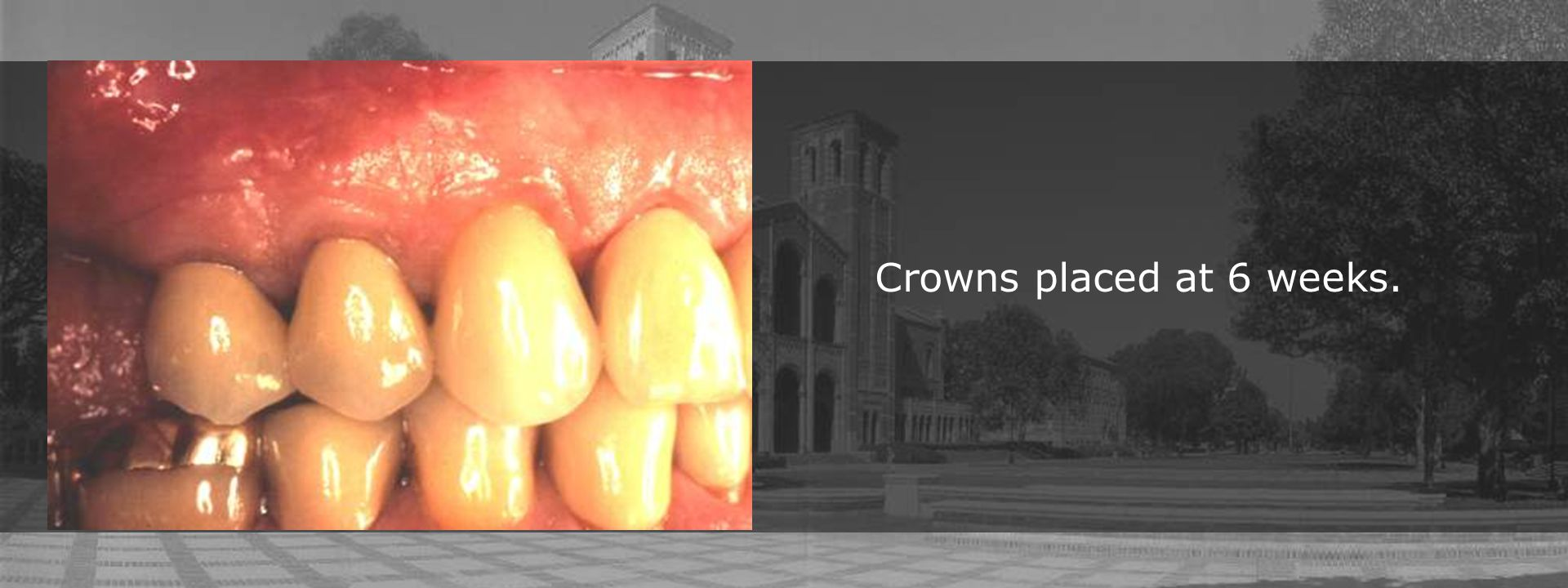 Crowns placed at 6 weeks.