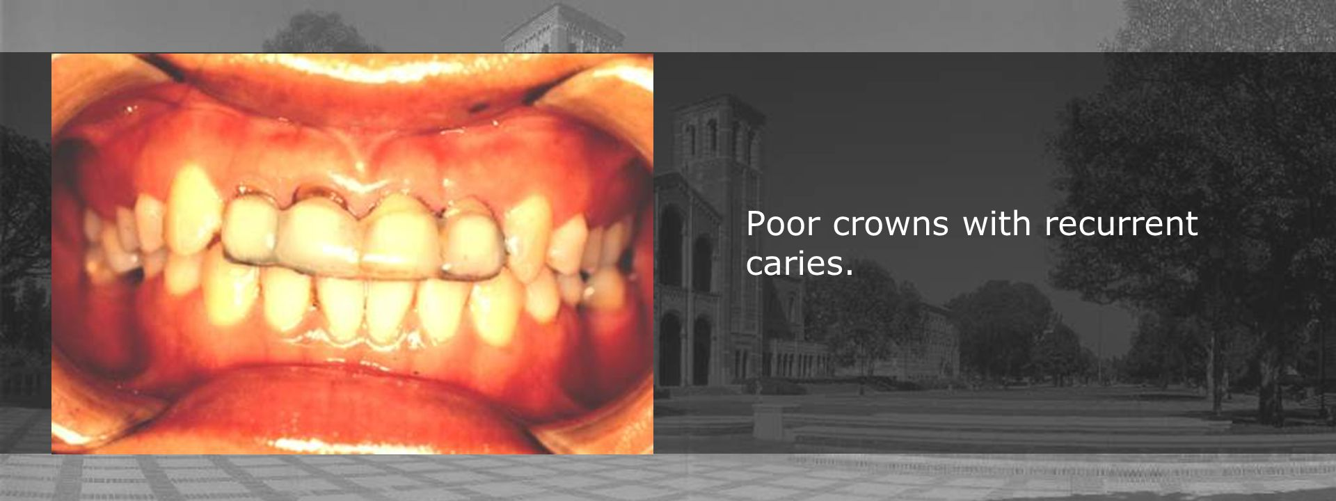 Poor crowns with recurrent caries.