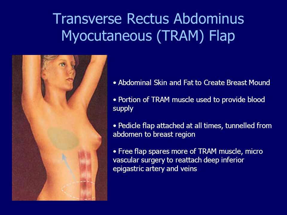 Transverse Rectus Abdominus Myocutaneous (TRAM) Flap Abdominal Skin and Fat to Create Breast Mound Portion of TRAM muscle used to provide blood supply
