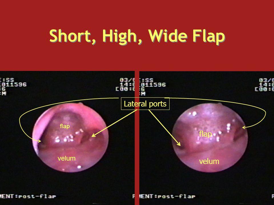 Short, High, Wide Flap velum flap velum Lateral ports