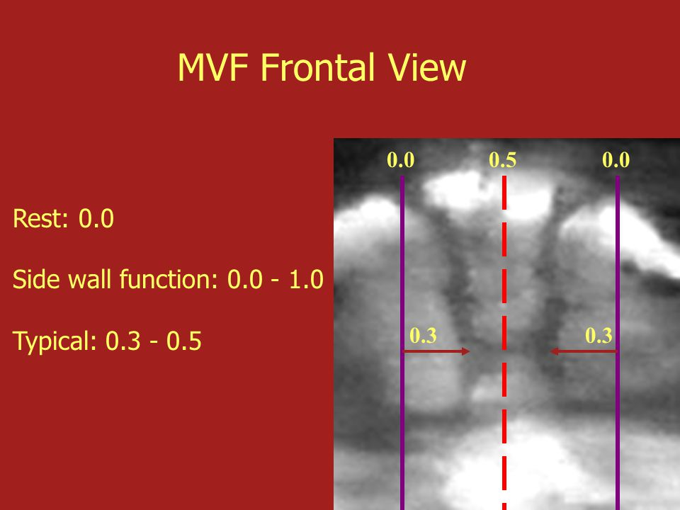 0.50.0 0.3 MVF Frontal View Rest: 0.0 Side wall function: 0.0 - 1.0 Typical: 0.3 - 0.5