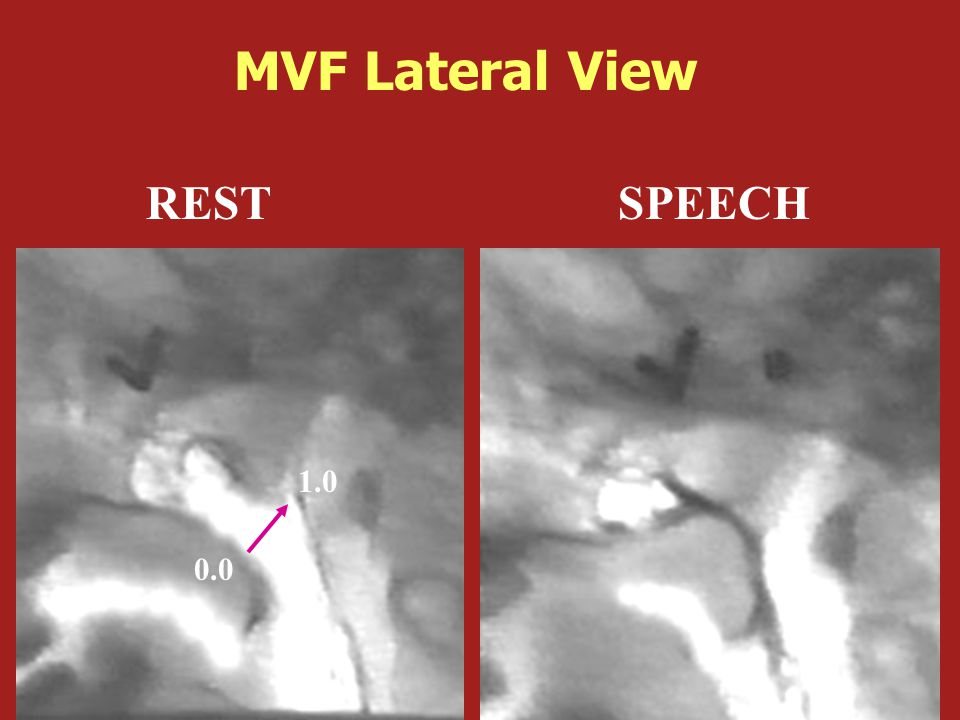 REST SPEECH 0.0 1.0 MVF Lateral View