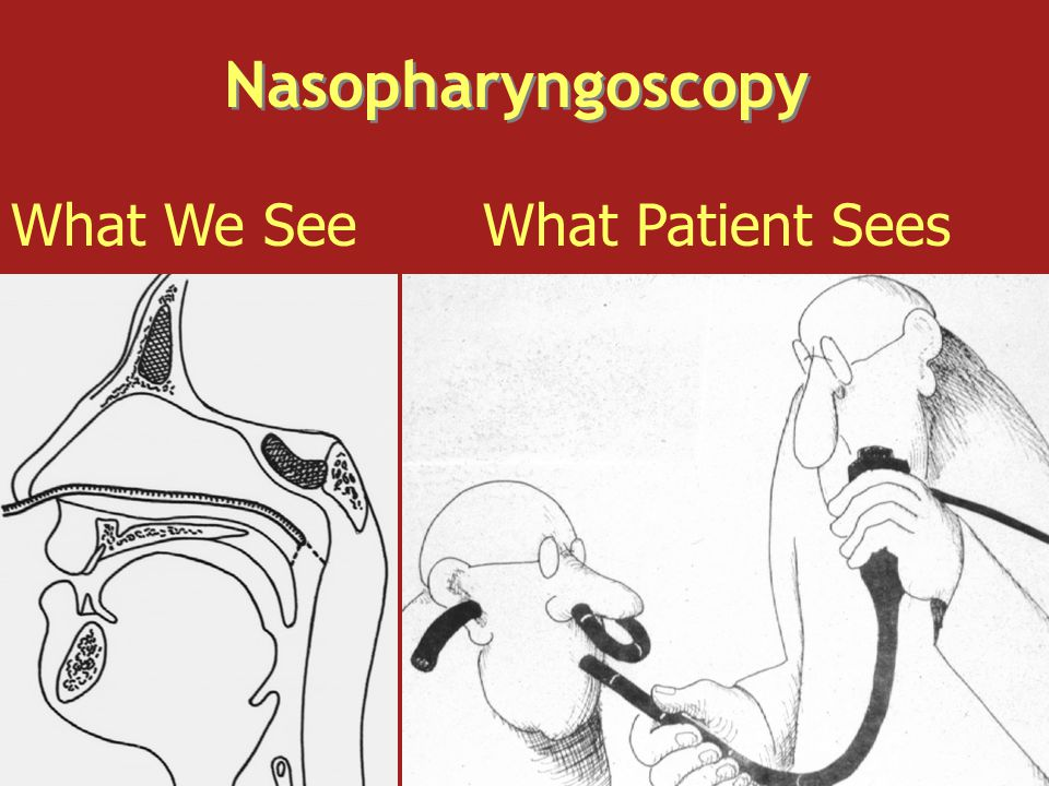 Nasopharyngoscopy What We SeeWhat Patient Sees