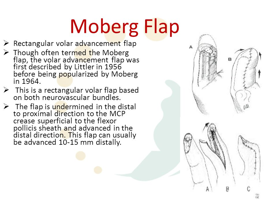 Moberg Flap  Rectangular volar advancement flap  Though often termed the Moberg flap, the volar advancement flap was first described by Littler in 1