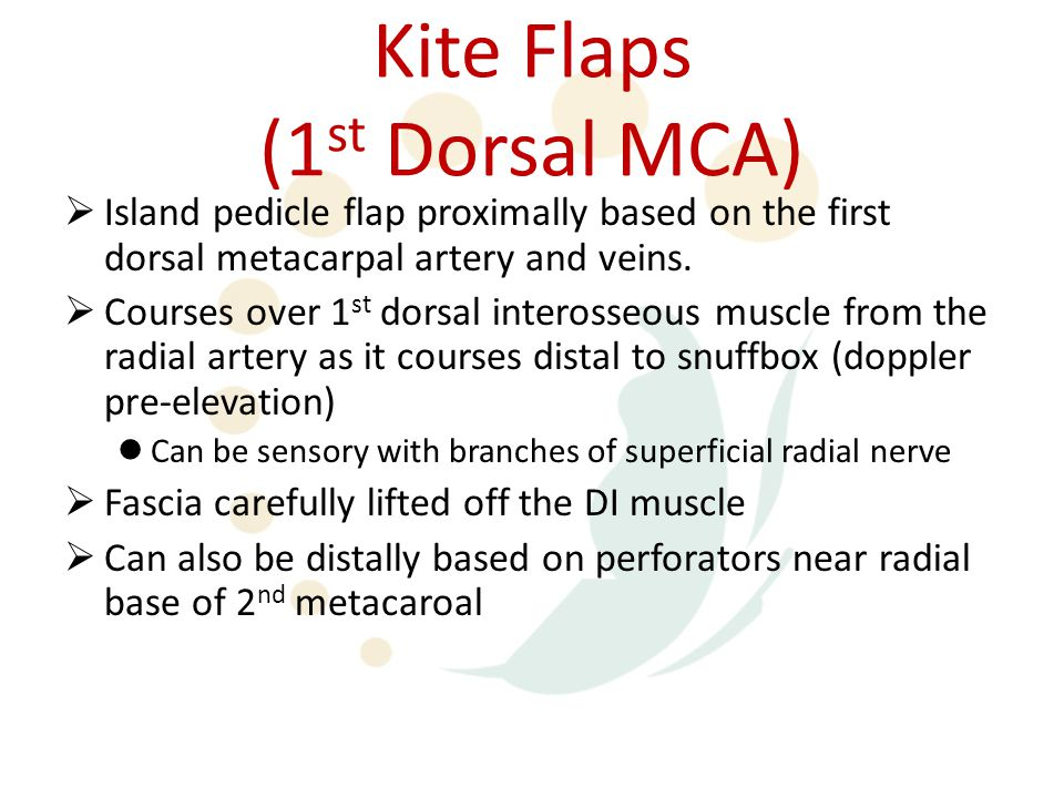 Kite Flaps (1 st Dorsal MCA)  Island pedicle flap proximally based on the first dorsal metacarpal artery and veins.  Courses over 1 st dorsal intero