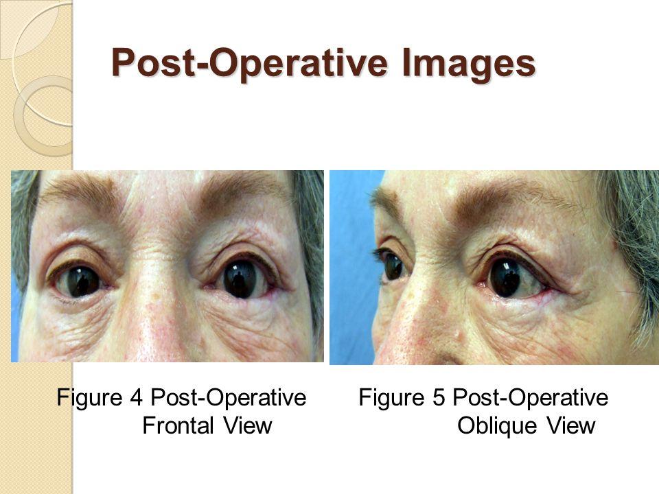 Post-Operative Images Figure 4 Post-Operative Frontal View Figure 5 Post-Operative Oblique View