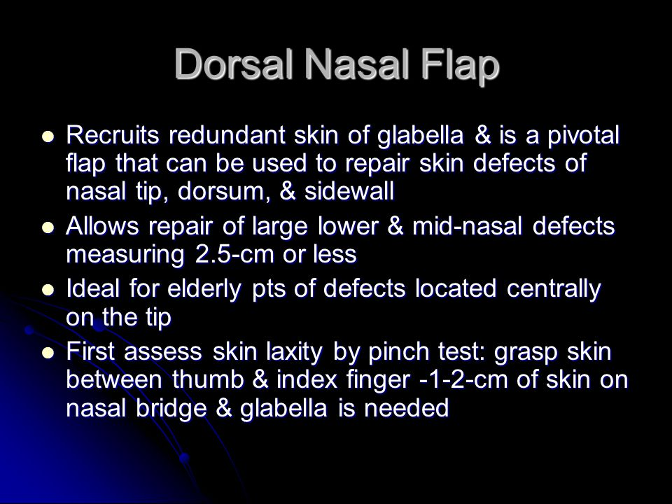 Dorsal Nasal Flap Recruits redundant skin of glabella & is a pivotal flap that can be used to repair skin defects of nasal tip, dorsum, & sidewall Recruits redundant skin of glabella & is a pivotal flap that can be used to repair skin defects of nasal tip, dorsum, & sidewall Allows repair of large lower & mid-nasal defects measuring 2.5-cm or less Allows repair of large lower & mid-nasal defects measuring 2.5-cm or less Ideal for elderly pts of defects located centrally on the tip Ideal for elderly pts of defects located centrally on the tip First assess skin laxity by pinch test: grasp skin between thumb & index finger -1-2-cm of skin on nasal bridge & glabella is needed First assess skin laxity by pinch test: grasp skin between thumb & index finger -1-2-cm of skin on nasal bridge & glabella is needed