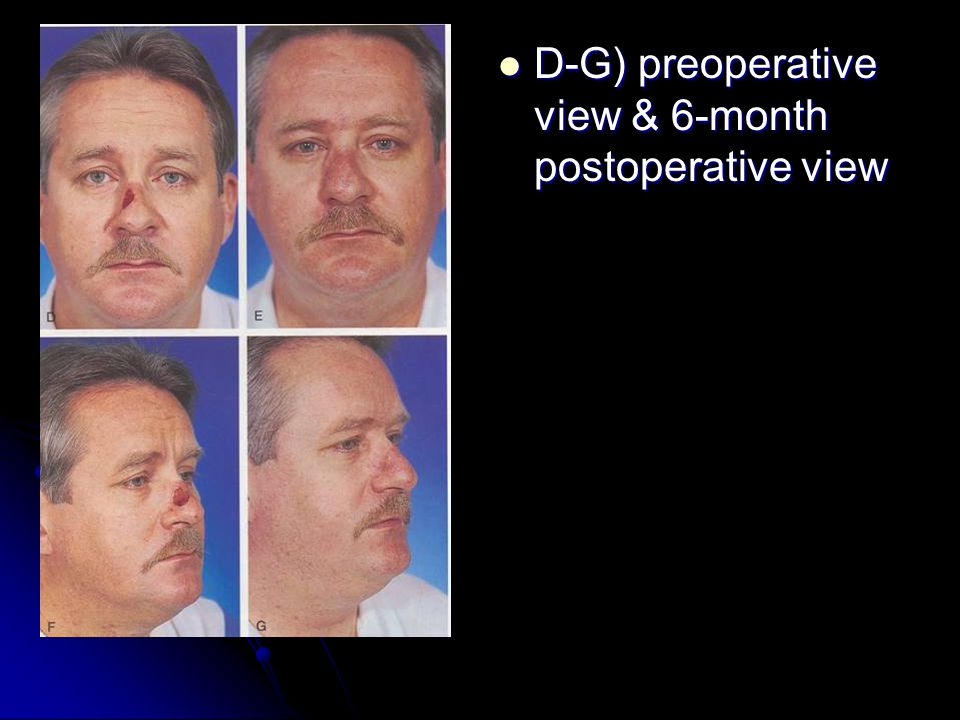 D-G) preoperative view & 6-month postoperative view D-G) preoperative view & 6-month postoperative view