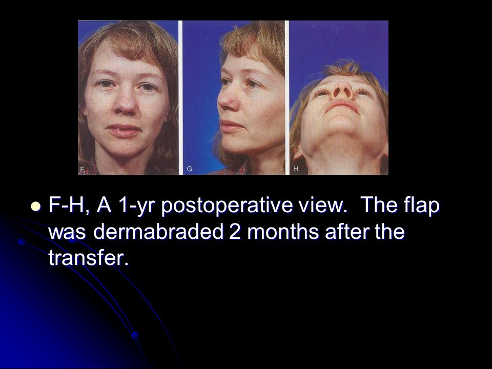F-H, A 1-yr postoperative view. The flap was dermabraded 2 months after the transfer.