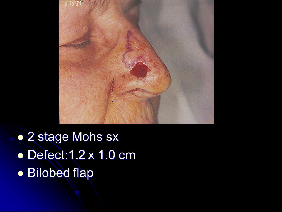 2 stage Mohs sx 2 stage Mohs sx Defect:1.2 x 1.0 cm Defect:1.2 x 1.0 cm Bilobed flap Bilobed flap
