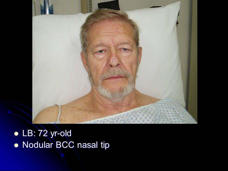 LB: 72 yr-old LB: 72 yr-old Nodular BCC nasal tip Nodular BCC nasal tip
