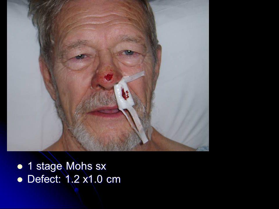 1 stage Mohs sx 1 stage Mohs sx Defect: 1.2 x1.0 cm Defect: 1.2 x1.0 cm