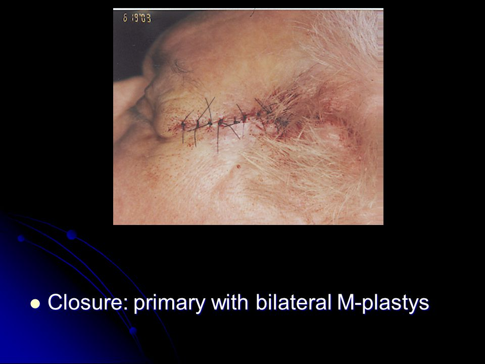 Closure: primary with bilateral M-plastys Closure: primary with bilateral M-plastys