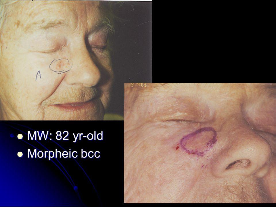 MW: 82 yr-old MW: 82 yr-old Morpheic bcc Morpheic bcc
