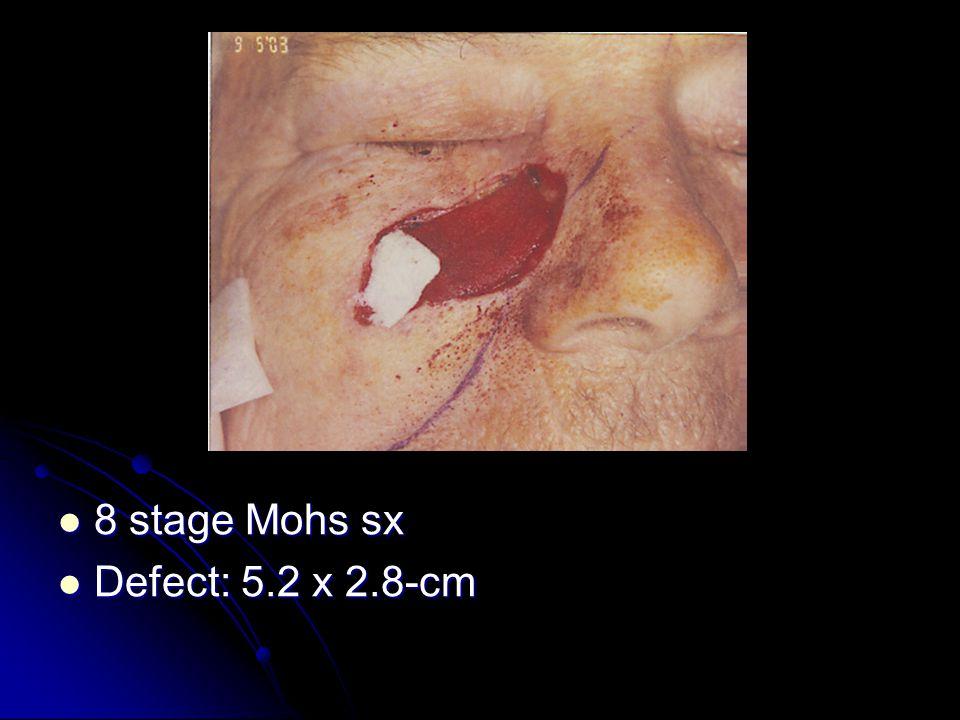 8 stage Mohs sx 8 stage Mohs sx Defect: 5.2 x 2.8-cm Defect: 5.2 x 2.8-cm