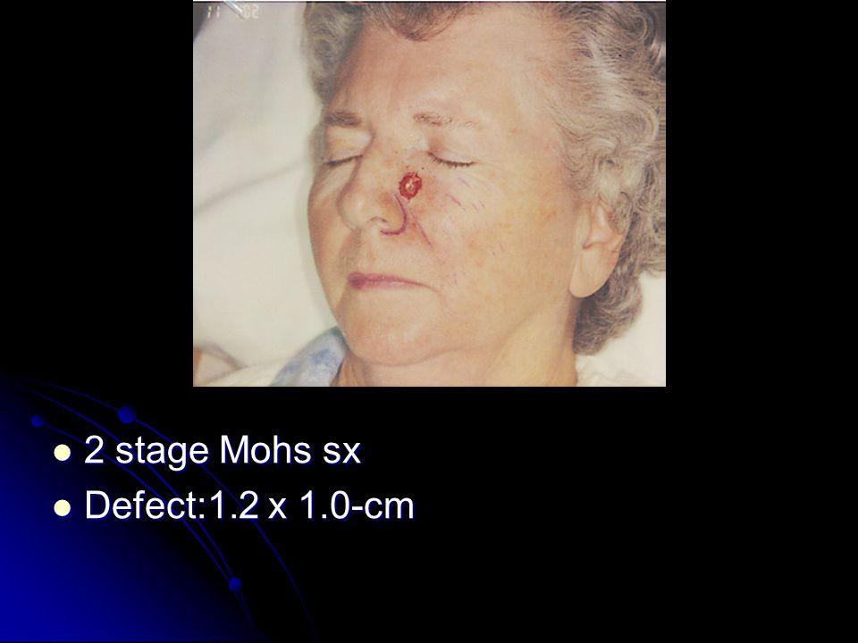 2 stage Mohs sx 2 stage Mohs sx Defect:1.2 x 1.0-cm Defect:1.2 x 1.0-cm