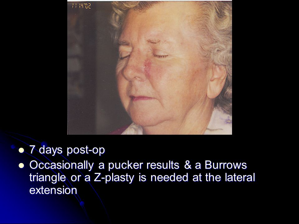 7 days post-op 7 days post-op Occasionally a pucker results & a Burrows triangle or a Z-plasty is needed at the lateral extension Occasionally a pucker results & a Burrows triangle or a Z-plasty is needed at the lateral extension