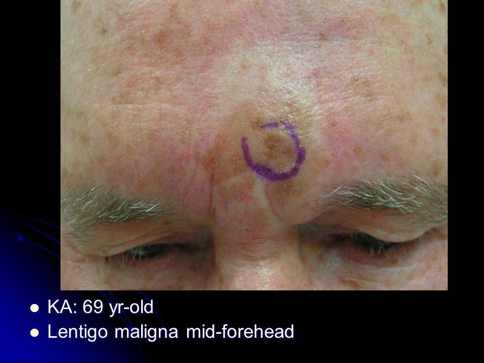 KA: 69 yr-old KA: 69 yr-old Lentigo maligna mid-forehead Lentigo maligna mid-forehead