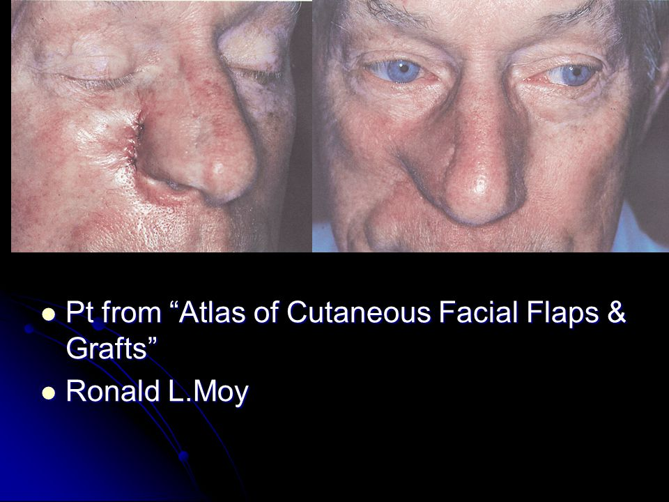 Pt from Atlas of Cutaneous Facial Flaps & Grafts Pt from Atlas of Cutaneous Facial Flaps & Grafts Ronald L.Moy Ronald L.Moy