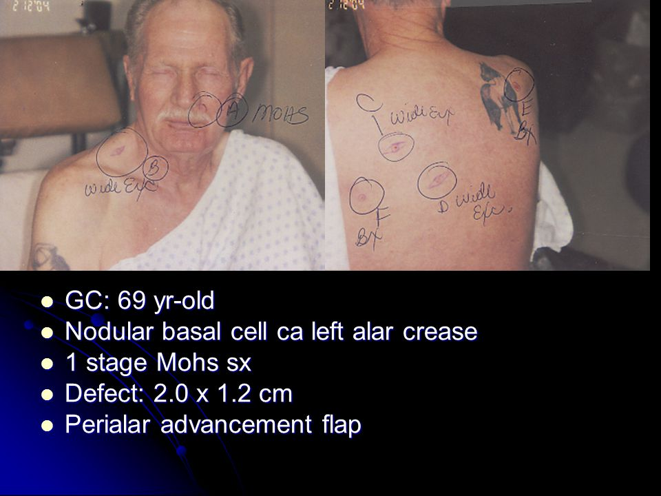 GC: 69 yr-old GC: 69 yr-old Nodular basal cell ca left alar crease Nodular basal cell ca left alar crease 1 stage Mohs sx 1 stage Mohs sx Defect: 2.0 x 1.2 cm Defect: 2.0 x 1.2 cm Perialar advancement flap Perialar advancement flap