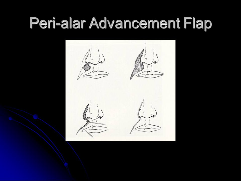 Peri-alar Advancement Flap