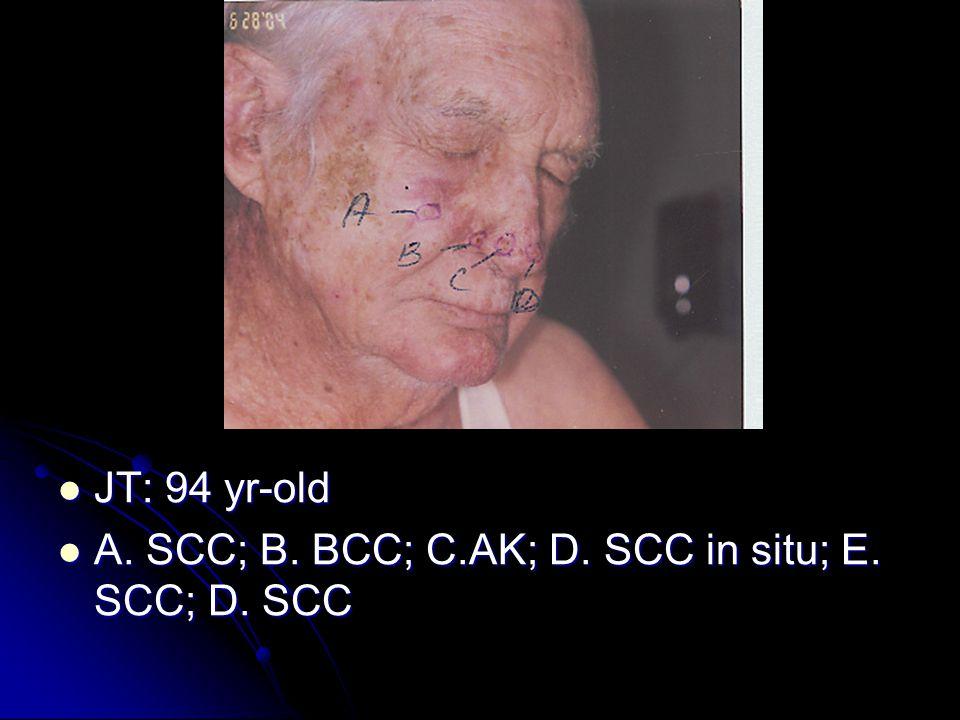 JT: 94 yr-old JT: 94 yr-old A.SCC; B. BCC; C.AK; D.