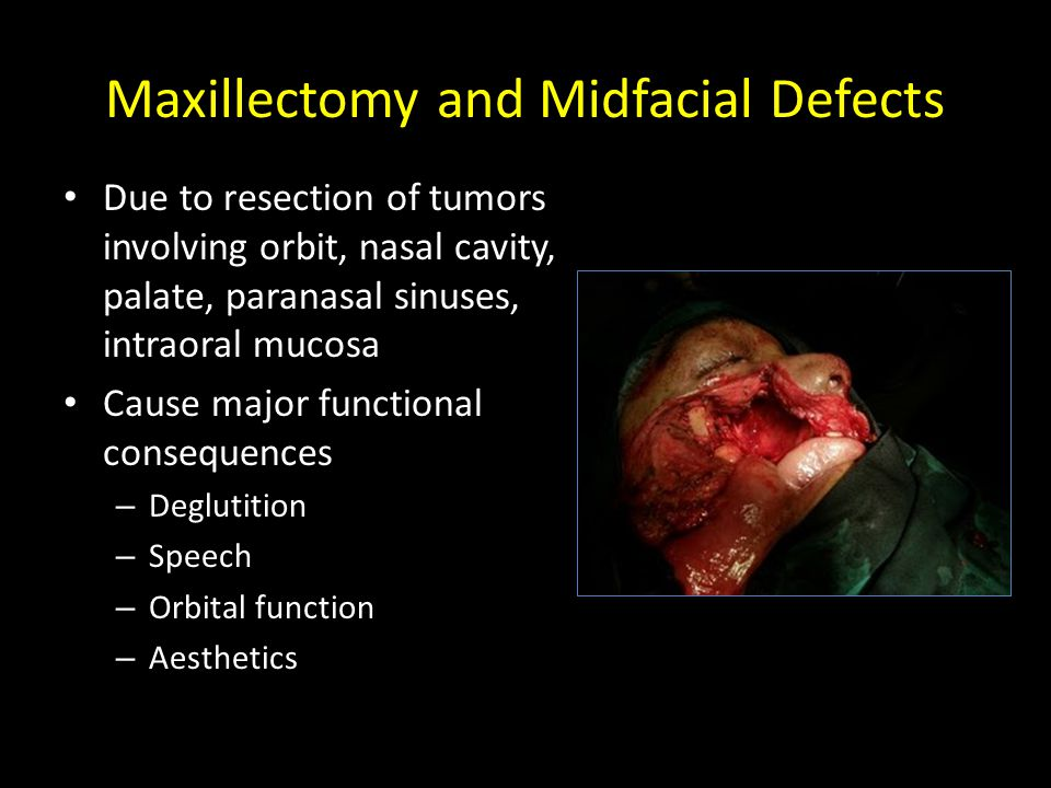 Maxillectomy and Midfacial Defects Due to resection of tumors involving orbit, nasal cavity, palate, paranasal sinuses, intraoral mucosa Cause major functional consequences – Deglutition – Speech – Orbital function – Aesthetics