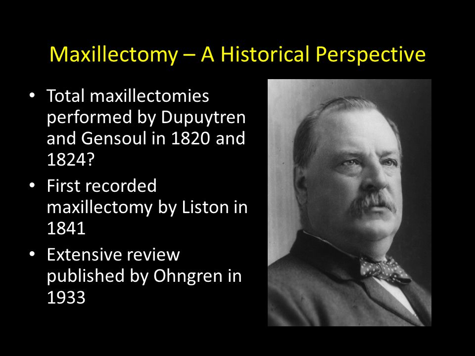 Maxillectomy – A Historical Perspective Total maxillectomies performed by Dupuytren and Gensoul in 1820 and 1824? First recorded maxillectomy by Listo