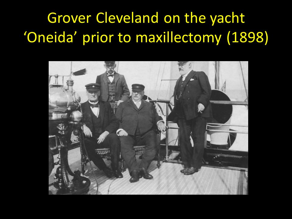 Grover Cleveland on the yacht 'Oneida' prior to maxillectomy (1898)