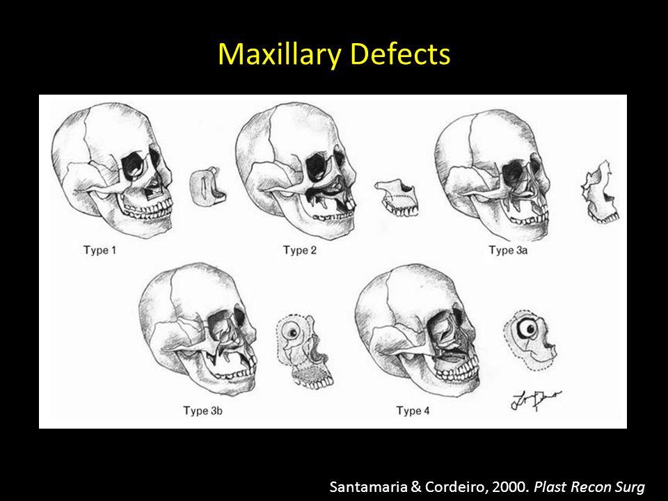 Maxillary Defects Santamaria & Cordeiro, 2000. Plast Recon Surg