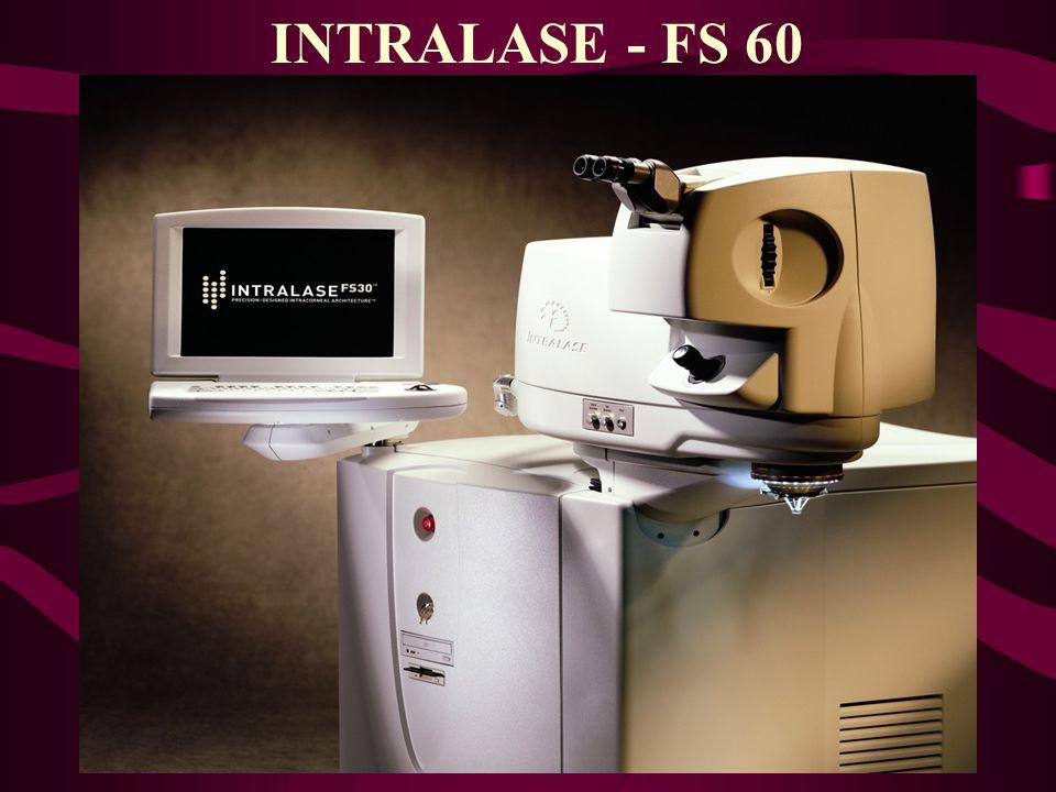 INTRALASE - FS 60