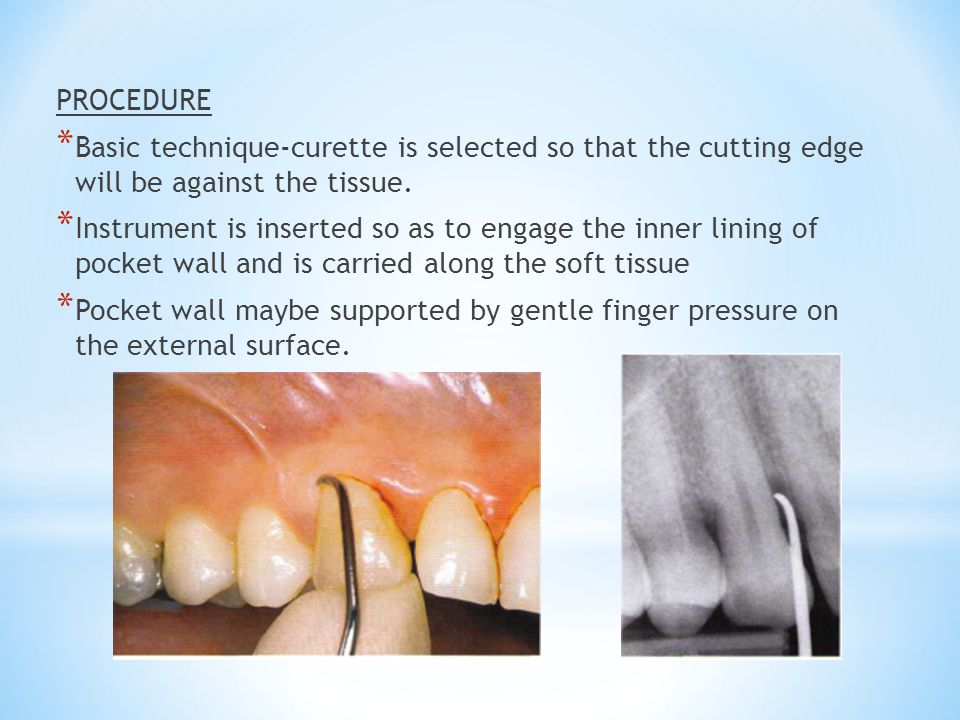 PROCEDURE * Basic technique-curette is selected so that the cutting edge will be against the tissue. * Instrument is inserted so as to engage the inne