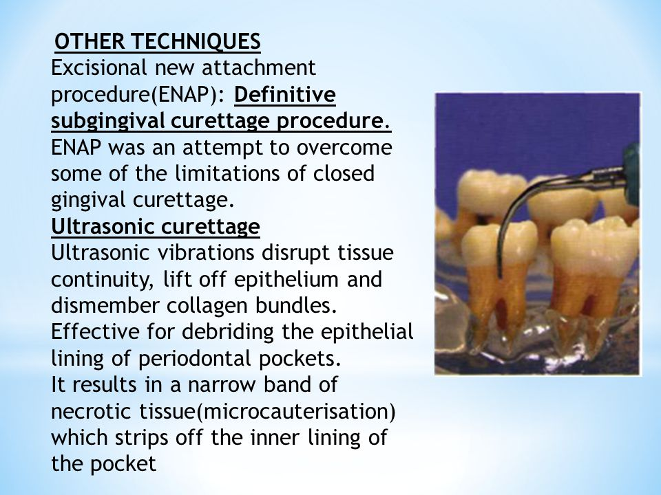 OTHER TECHNIQUES Excisional new attachment procedure(ENAP): Definitive subgingival curettage procedure. ENAP was an attempt to overcome some of the li