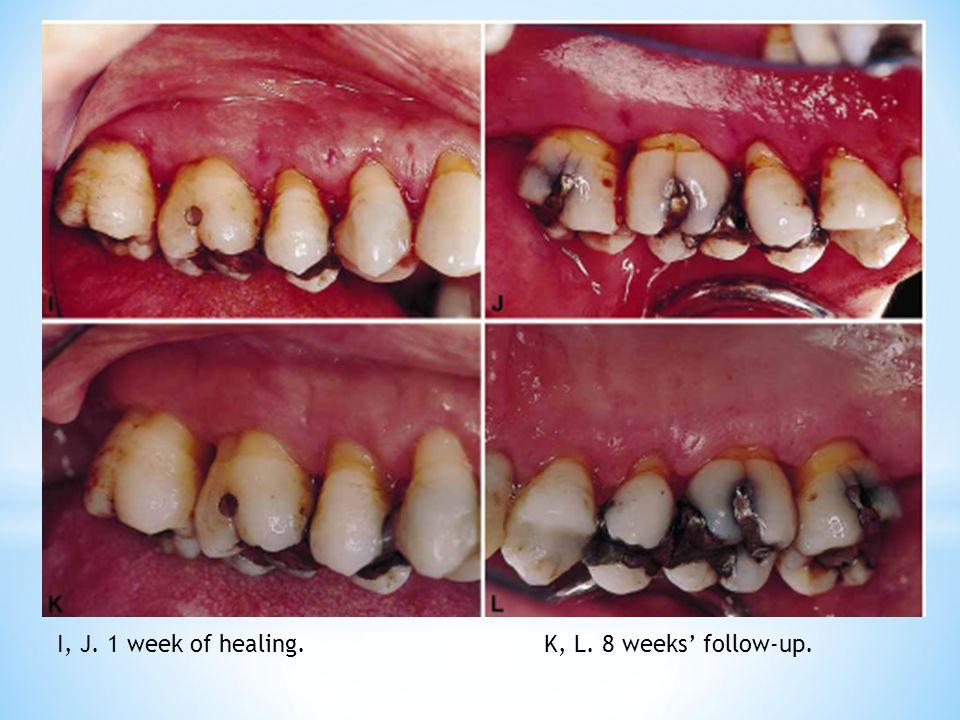 I, J. 1 week of healing. K, L. 8 weeks' follow-up.