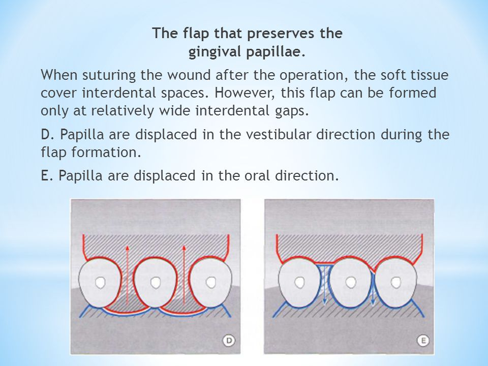The flap that preserves the gingival papillae. When suturing the wound after the operation, the soft tissue cover interdental spaces. However, this fl