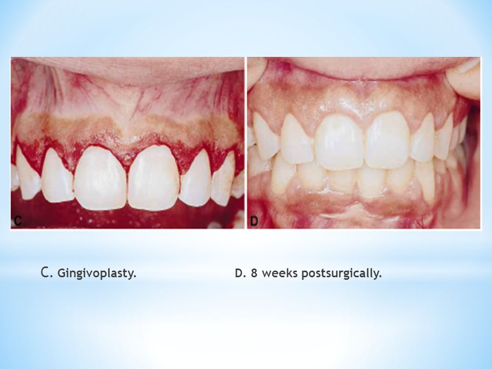 C. Gingivoplasty. D. 8 weeks postsurgically.