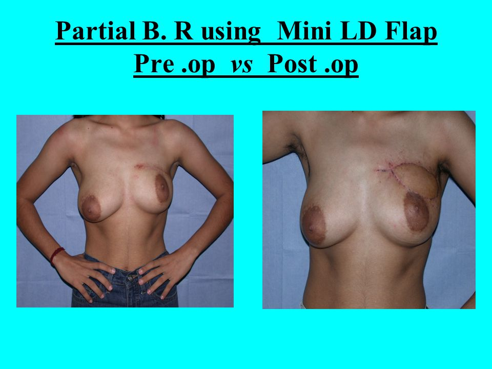 Partial B. R using Mini LD Flap Pre.op vs Post.op