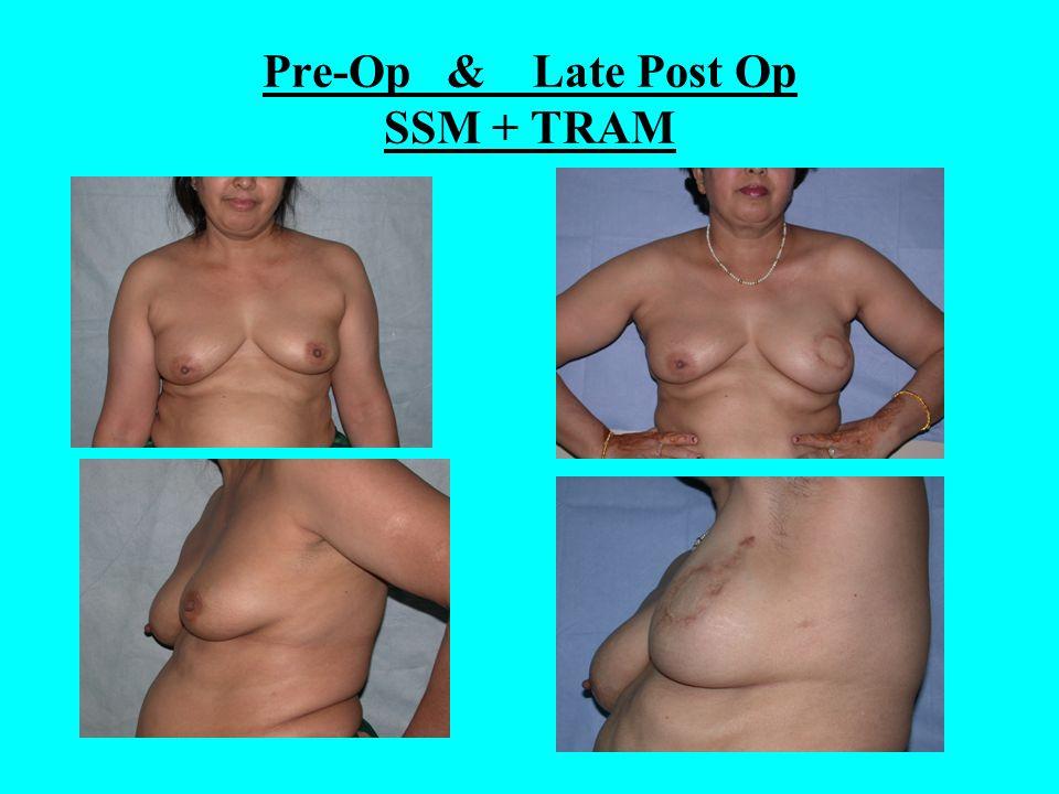 Pre-Op & Late Post Op SSM + TRAM