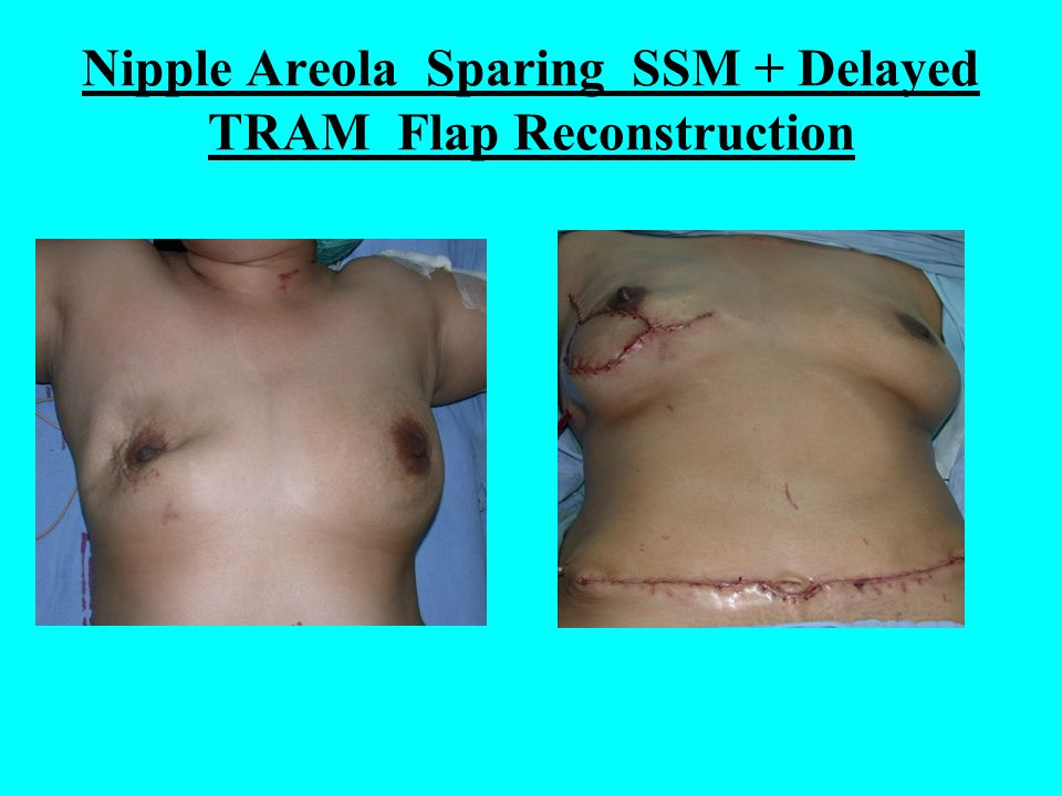 Nipple Areola Sparing SSM + Delayed TRAM Flap Reconstruction
