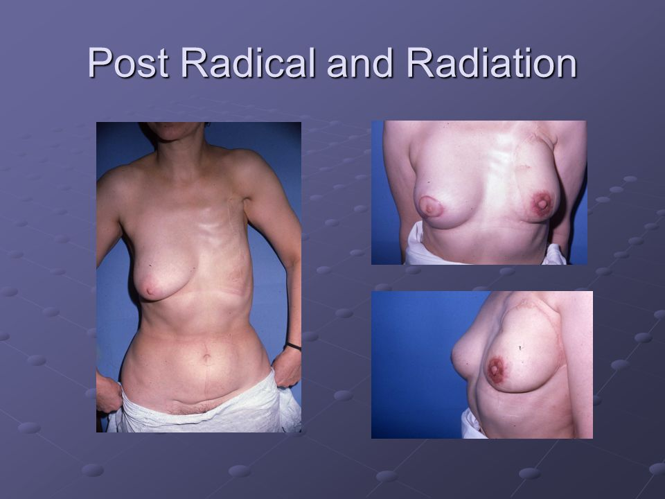 Post Radical and Radiation