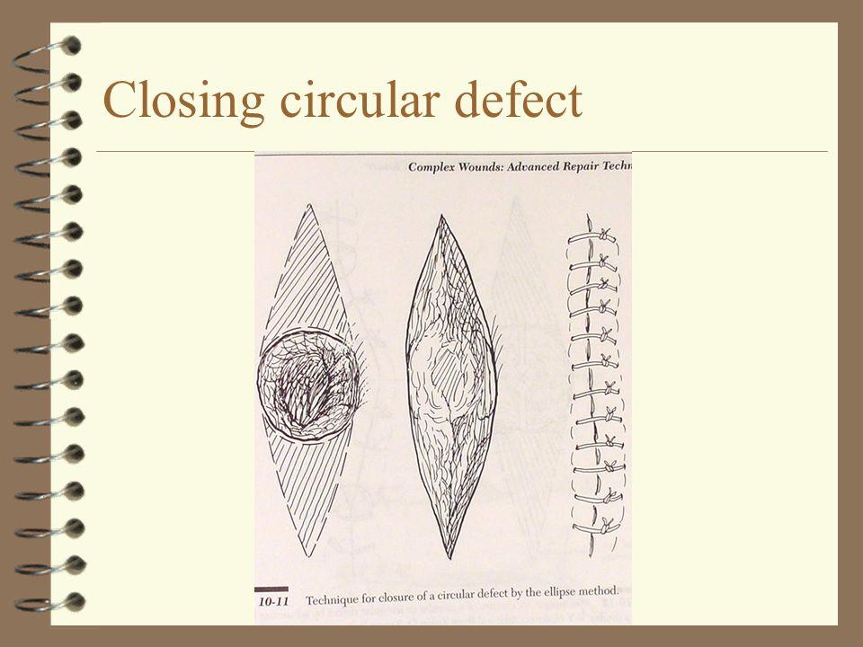 Closing circular defect