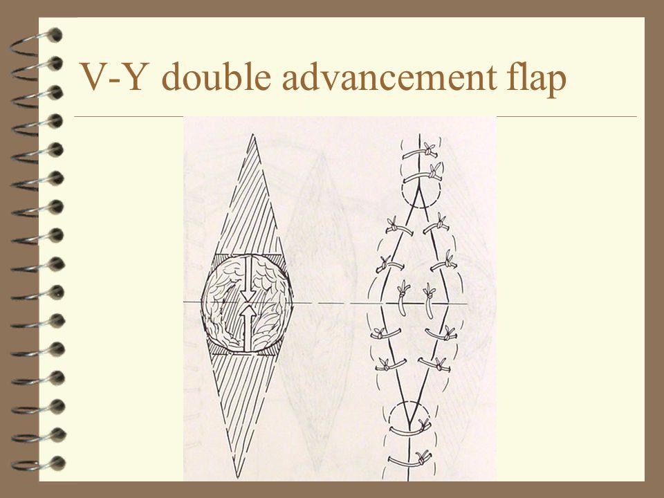 V-Y double advancement flap
