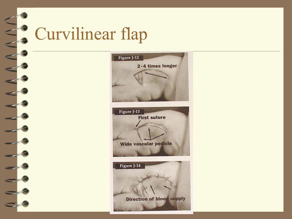 Curvilinear flap